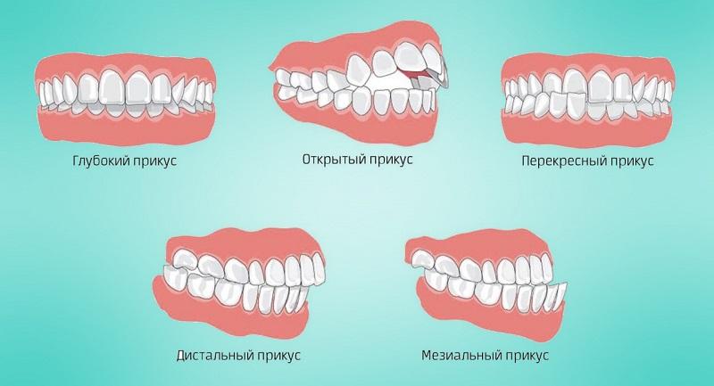 Челюсть и позвоночник неразрывно связаны: если болит спина, нужно лечить зубы!