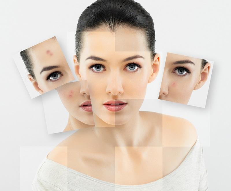 Гепариновая мазь для лица: свежее и подтянутое лицо уже после нескольких дней применения.
