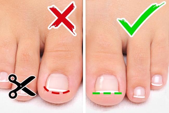 6 правил ухода, благодаря которым ваши ножки всегда будут выглядеть безупречно