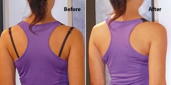 10 позорных ошибок в ношении нижнего белья: желание соблазнить, доведенное до абсурда!